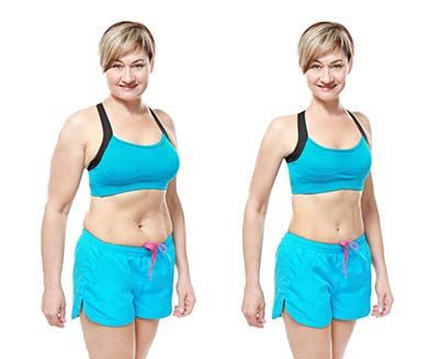 Weight Loss Consultation Before After